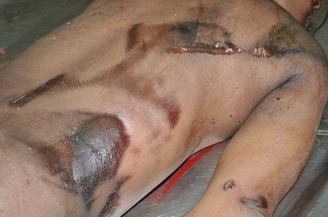 Abrasion with Contusion
