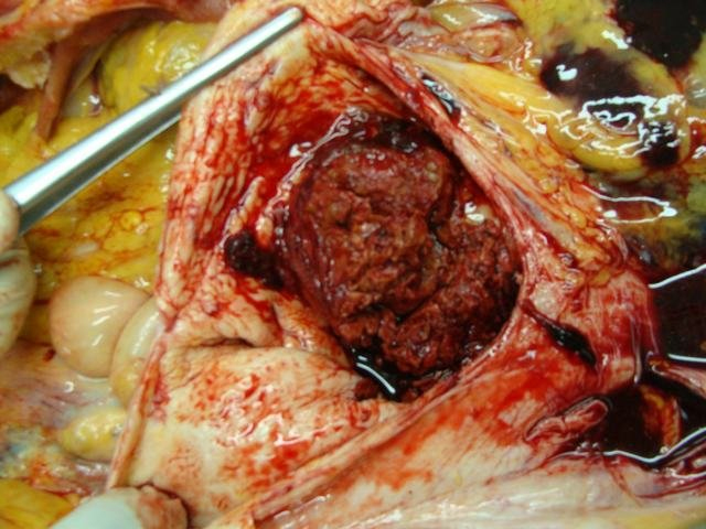 aortic aneurysm with thrombus
