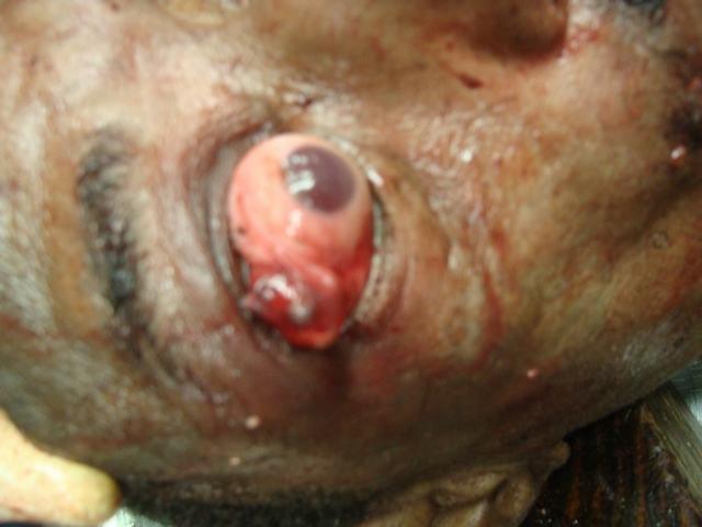 Bullet Embeded in the Cunjunctival Sac
