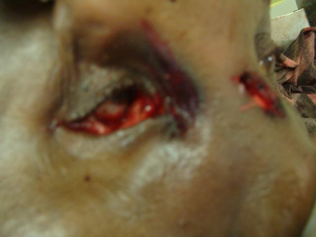 Bullet Track through the Eye