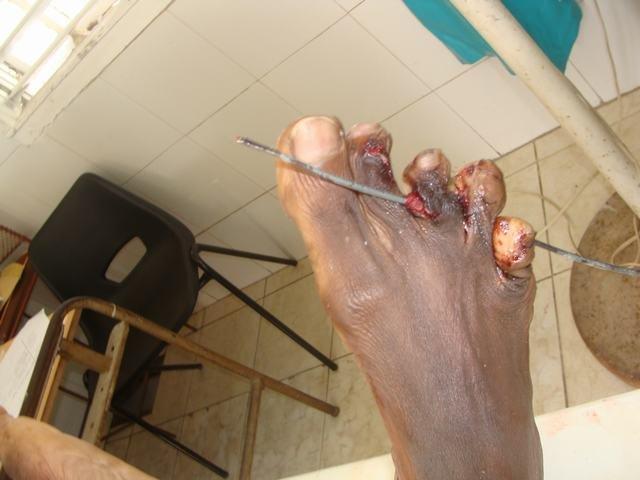 Gunshot Wounds through the Toes