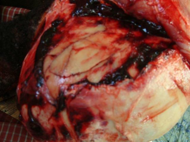 Temporal Bone Fracture