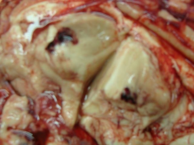 traumatic haemorrhage in thalamus